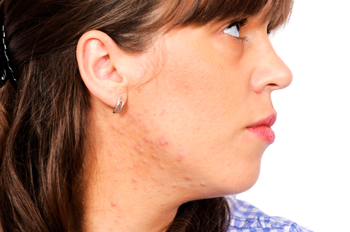 facts and fallacies adult acne